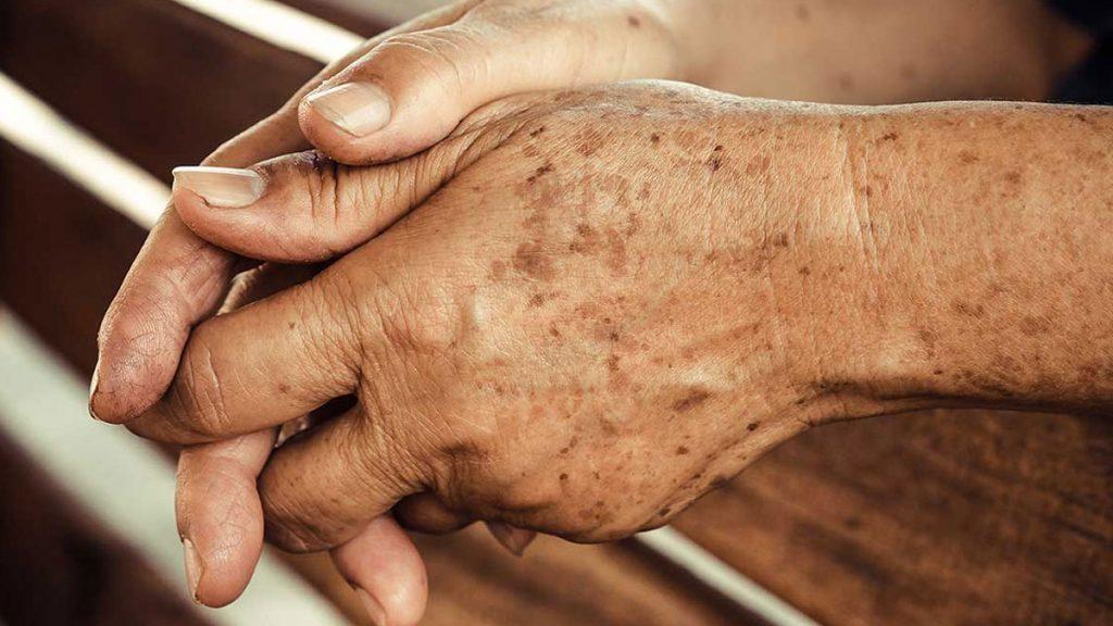 Elimine manchas de idade com o melhor medicamento caseiro que poderia fazer, sendo simples de preparar, eficaz e muito barato.
